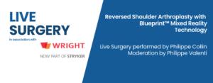 LiveSurgery